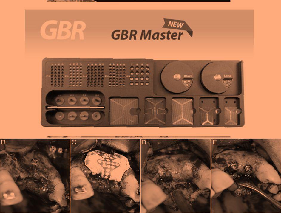 إجراءات التوالد النسيجي والعظمي الموجه GBR، GTR