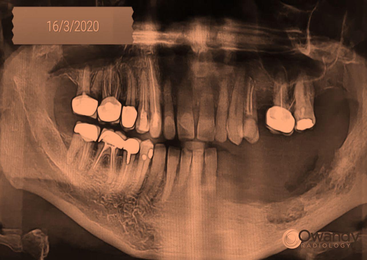 الأمواج فوق الصوتية في جراحة التهاب العظم والنقي في الفك السفلي Osteomyelitis